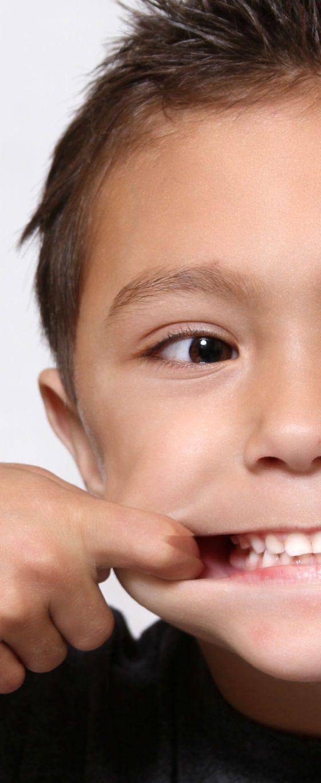 Egyszerű megoldás az egyenes fogsorért