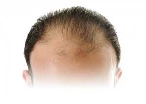 A Greffe de cheveux miért népszerű?